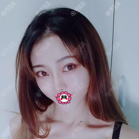 郑州东方假体隆鼻恢复10天效果