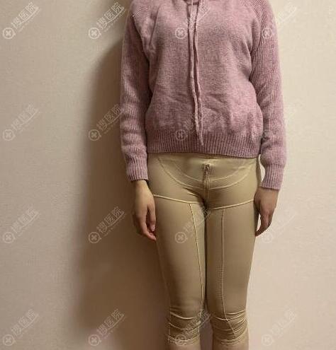 做大腿吸脂拆线后需24小时穿塑身裤