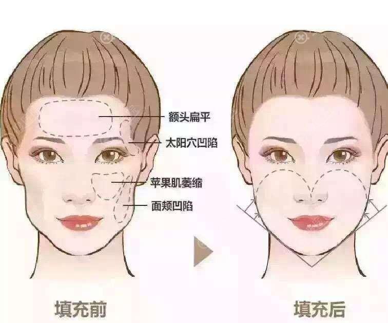 自体脂肪面部填充效果对比图