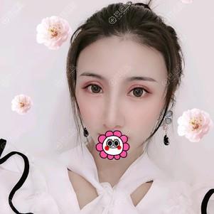 郑州华领朱志娟隆鼻效果怎么样?