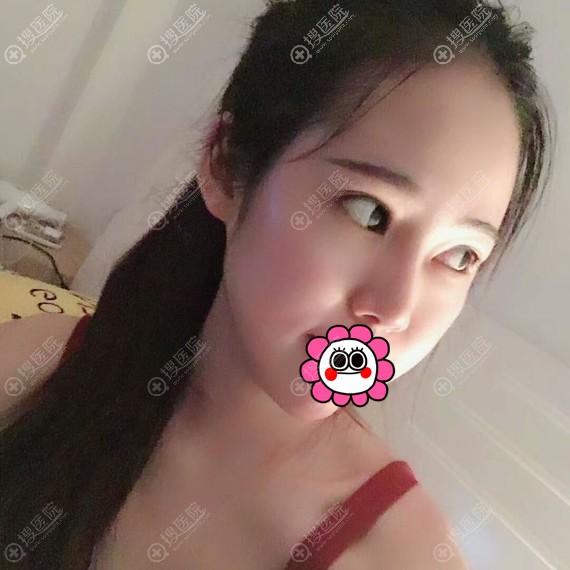 南宁梦想耳软骨隆鼻恢复7天