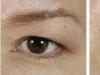 45岁眼皮下垂松弛选择做提眉手术后了解了价格和恢复时间