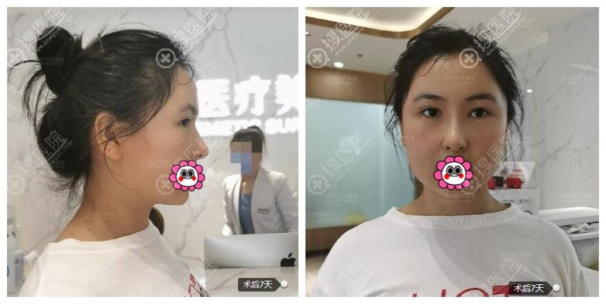 北京沃尔汪垟全肋软骨隆鼻案例