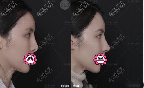 北京活尔汪垟鼻修复案例