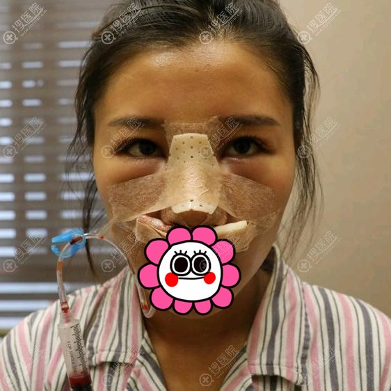 在昆山米扬丽格隆鼻术后