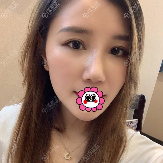 昆山米扬丽格张金辉假体隆鼻案例