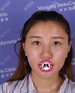 昆山米扬丽格张金辉做鼻子咋样?这里有他做的假体隆鼻作参考