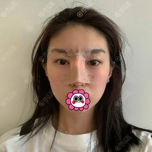 刘金华肋软骨隆鼻术后