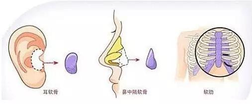 三种自体软骨隆鼻材料