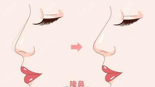 自体软骨隆鼻效果