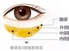 为什么不建议割眼袋?是因为老的快还是去眼袋手术有什么后遗症