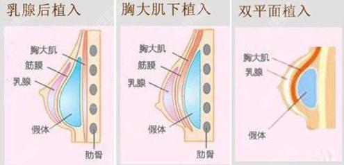 假体隆胸植入层次示意图