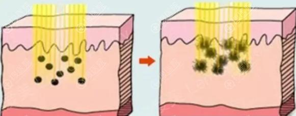 激光祛斑原理图
