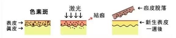 激光祛斑治疗过程