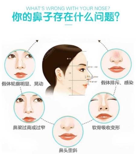 隆鼻失败类型