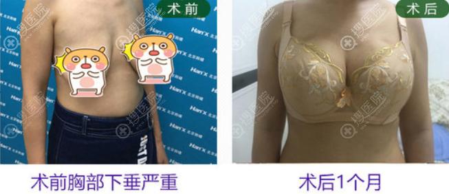 人工韧带乳房悬吊术对比效果图