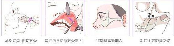 颧骨手术过程图