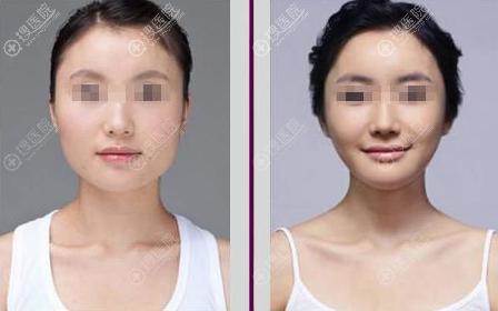 下颌角手术案例对比图