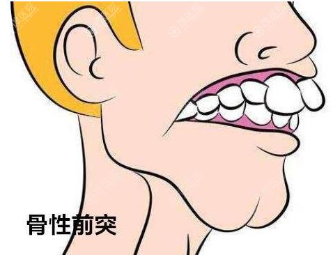 骨性龅牙怎么矫正?