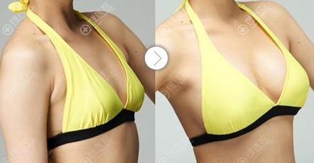 傲诺拉假体隆胸恢复半年对比效果图