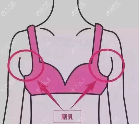 副乳不治疗会有什么影响?