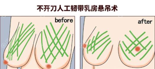乳房悬吊术示意图