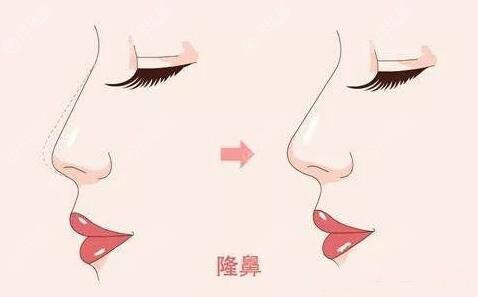 假体隆鼻对比效果图
