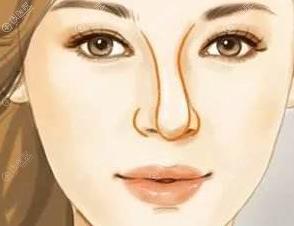隆鼻后出现歪斜的原因有哪些?