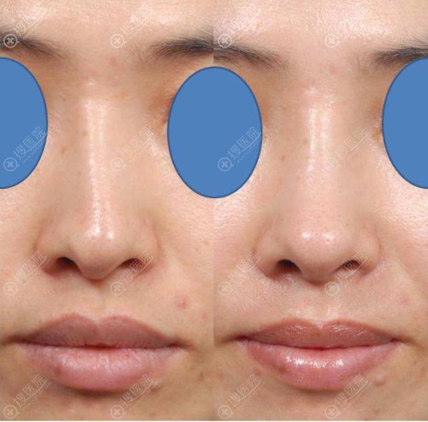 歪鼻矫正前后对比图