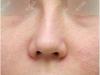 鼻梁歪了能纠正过来么?按鼻部情况决定手法复位还是鼻修复