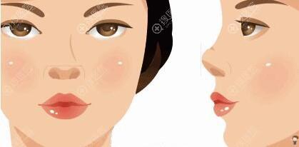 鼻子萎缩是什么引起的