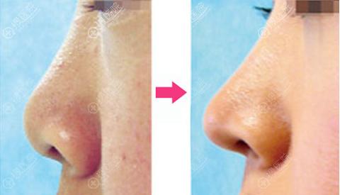 鼻头挛缩失败修复对比图