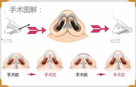 缩小鼻头鼻翼示意图