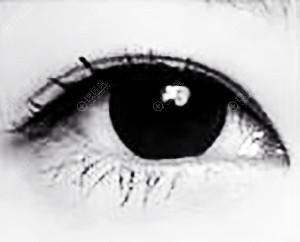 双眼皮6mm宽效果图