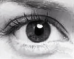 双眼皮7mm宽效果图
