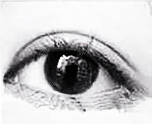 双眼皮8mm宽效果图