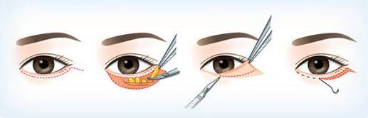 外切祛眼袋手术过程图
