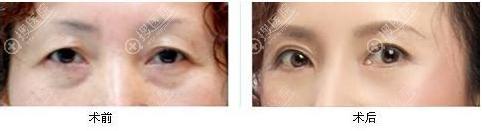 切眉手术前后对比效果图