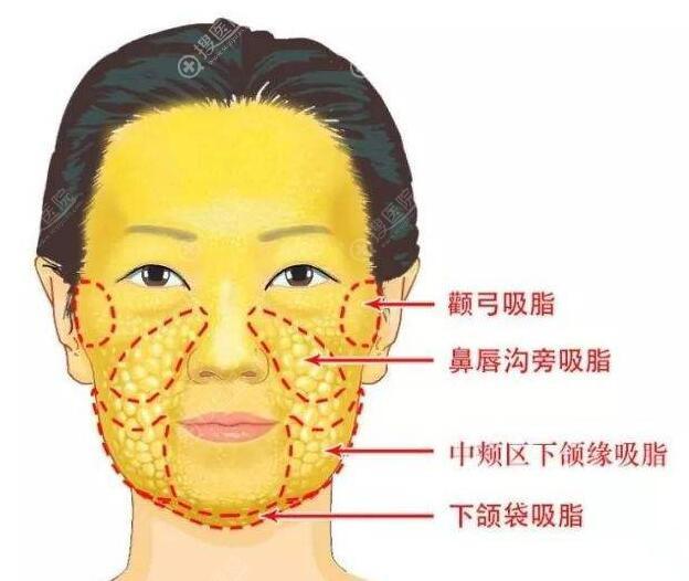 面部吸脂能吸多少毫升