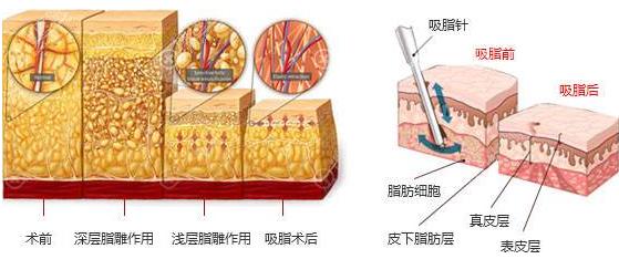吸脂瘦腿原理图