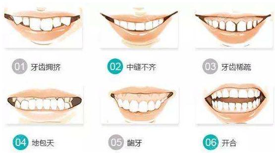 矫正牙齿的适应症