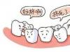 千万别给孩子矫正牙齿是不是谣言,判断不了就先来了解下原因