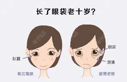 眼袋容易使人显老