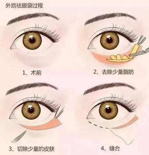 外切祛眼袋手术过程
