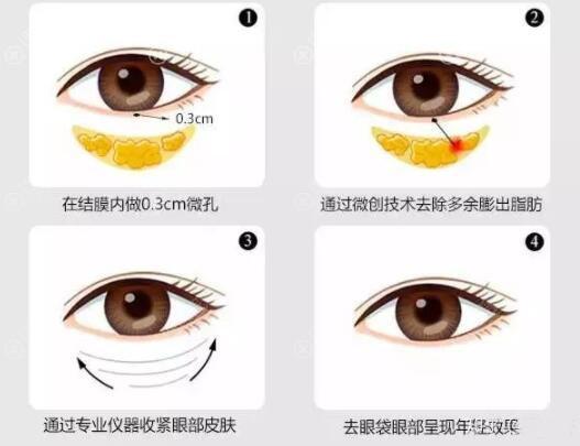 激光溶脂祛眼袋过程图