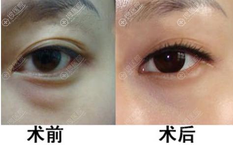 激光祛眼袋术前术后对比照