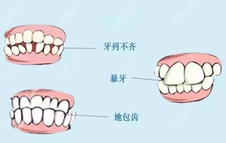 为什么牙齿矫正后悔一辈子呢