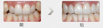 牙齿矫正前后对比效果