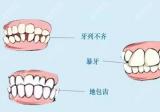为什么牙齿矫正后悔一辈子?先来搞清楚正畸拔牙弊端和危害再说