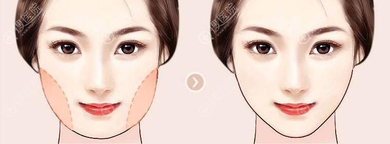 面部吸脂和光纤溶脂瘦脸哪个效果好?